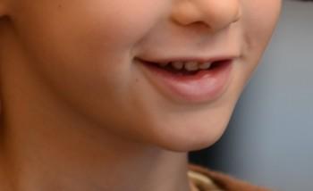 linee guida per la sedazione dell'  American Academy of Pediatric Dentistry